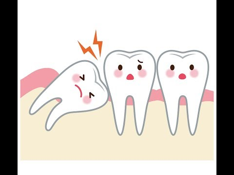 Best Home Remedies To Reduce Wisdom Tooth Pain