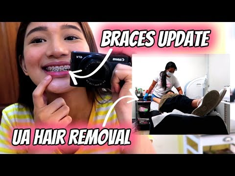 BRACES UPDATE + UNDERARM HAIR REMOVAL Philippines  Tyra C ❤
