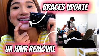 Baixar BRACES UPDATE + UNDERARM HAIR REMOVAL (Philippines) | Tyra C. ❤