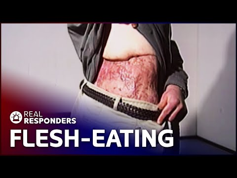 The Flesh-Eating Illness Causing Horrific Destruction   Diagnosis Unknown   Real Responders