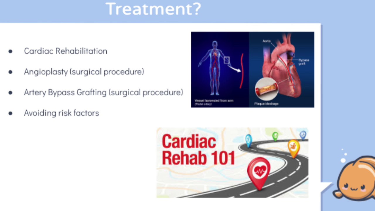 cardiac rehabilitation thesis Cardiac rehabilitation: a multidisciplinary approach that aims to modify cardiac risk factors through lifestyle change and improve functional capacity, self-confidence, and reduce psychological distress the desired result is for patients to regain and maintain their best physical, emotional and vocational state.