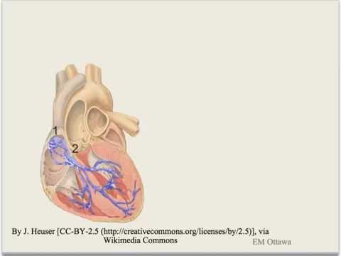 Arrhythmia (Bradycardia)