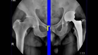 Эндопротез тазобедренного сустава.wmv(Рентгенограммы эндопротеза тазобедренного сустава., 2011-10-03T06:59:15.000Z)