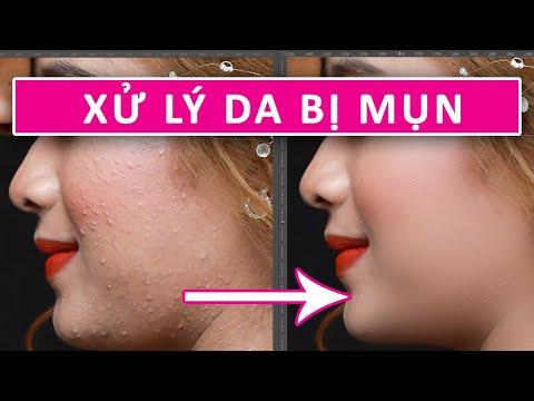 Xử lý da bị mụn bằng Dust & Scratches | Hướng Dẫn Photoshop
