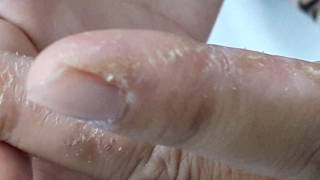 Tinea Manuum. Gentamicin280mg+Kenalog20mg Fluconazole1daily12 Doxycycline1bd27 Ivermectin10mg