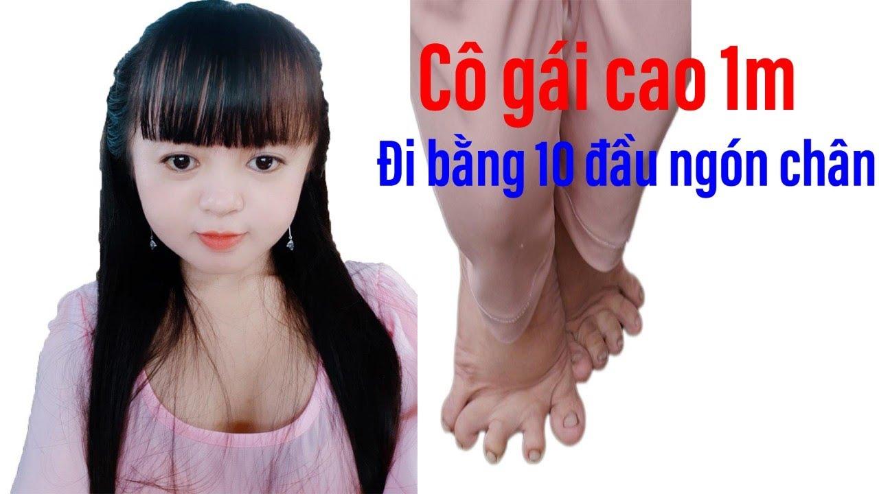Kỳ lạ chuyện cô gái đi trên 10 đầu ngón chân có biệt danh Nàng út ống tre II ĐỘC LẠ BÌNH DƯƠNG