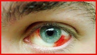 Pulso vaso oculares bajo sanguíneo