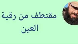 رقية العين /الراقي المغربي مراد ابو سليمان