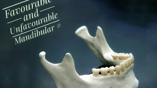 Mandibular Fractures : Favourable and Unfavourable