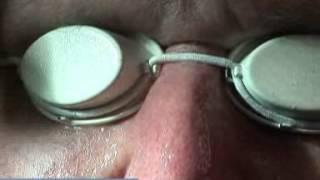 Anesis Spa - Ellipse LED Collagen / Elastin Stimulation Therapy Thumbnail