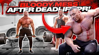 BLOODY MESS AFTER DEADLIFT PR WITH 335LB INSANELY HUGE 23 YEAR OLD BODYBUILDER!