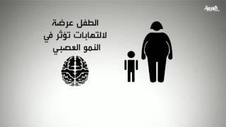 دراسة.. تأخر نمو الأطفال مرتبط بسمنة الوالدين