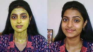 Effective Face Pack To Remove Acne, Acne Scars & Pimples | Clear Skin Goals