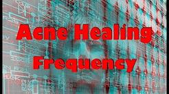 hqdefault - Acne Skin Healing Remedies