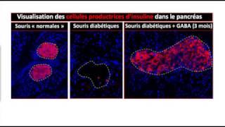 GABA pourrait induire la régénération des cellules produisant l'insuline