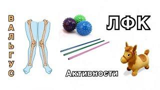 ВАЛЬГУС СТОП и КОЛЕНЕЙ | ч.2 ЛФК и полезные активности