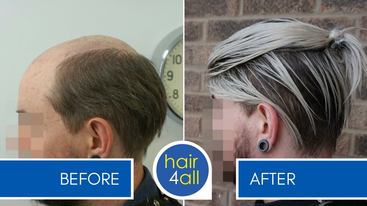 Hair4all Non Surgical Hair Replacement System For Men