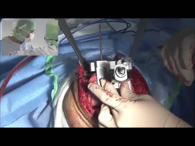 Prothèse totale de genou - Dr H.Silbert