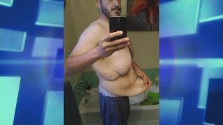 Surgery Surprise for Man Who Lost Half His Body Weight
