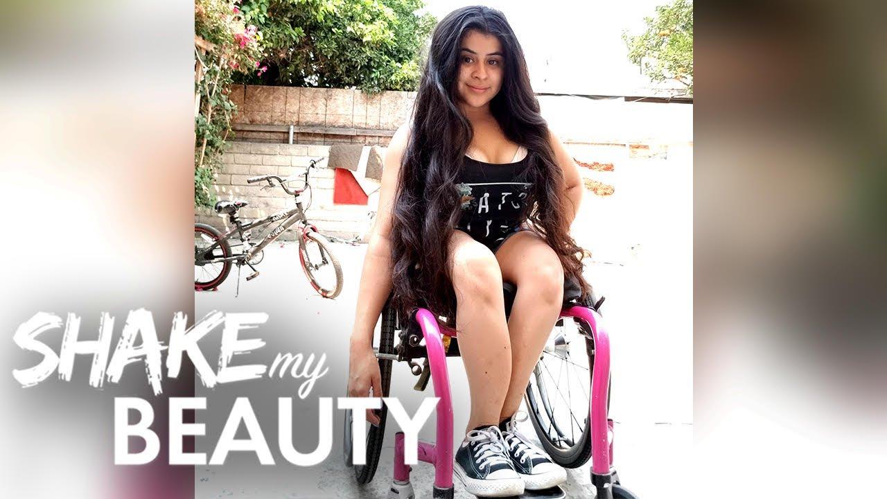 I'm 26 And I've Broken 400 Bones | SHAKE MY BEAUTY