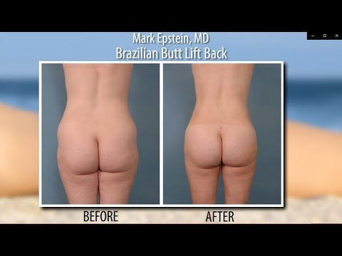 The Brazilian Butt Lift Is a 1, 2 Punch