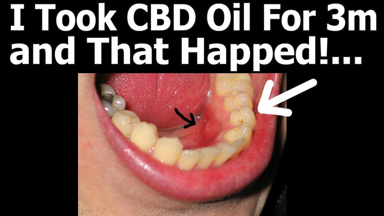 Complete Guide To CBD Oil, Marajuana ...