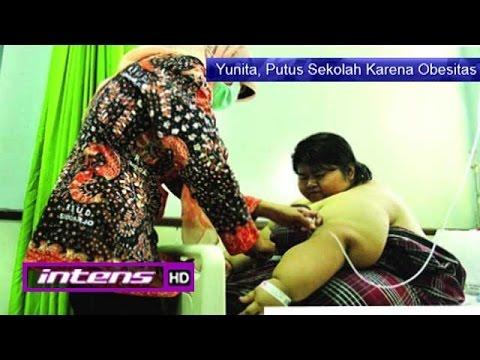 Kondisi Yunita Gadis Obesitas Asal Sidoarjo - Intens 16 September 2016