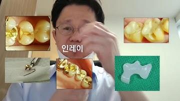 레진 /  인레이  / 크라운 치과치료 정리