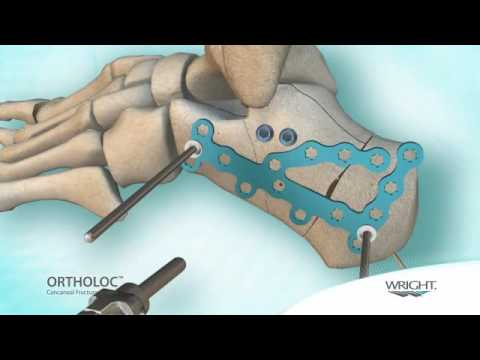 Wright - Ortholoc Calcaneal Fracture system