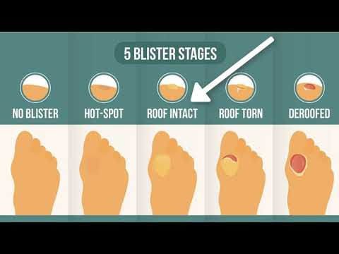 How To Treat Your Blister (According To The Integrity Of Your Blister Roof) | Blister Prevention