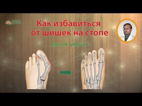 Как избавиться от косточки или шишки на большом пальце стопы / Hallux Valgus