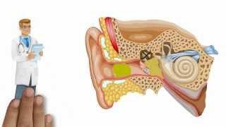 Système auditif
