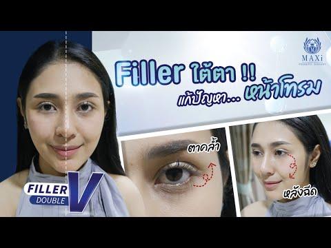 #ฟิลเลอร์ #Filler ใต้ตาแก้ปัญหา หน้าโทรม ใต้ตาคล้ำ