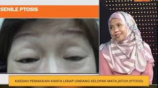 Ptosis Repair with Muller's Muscle–Conjunctival Resection  (MMCR)   فيديو تعليمي  للاطباء فقط.