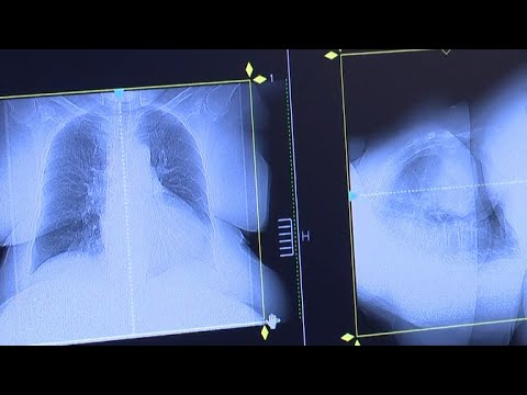 New concerns about lung cancer risk in young women