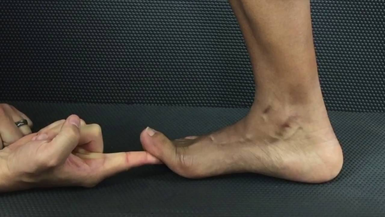 Foot and Ankle Examination - Physiopedia