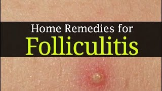 10 Home Remedies for Folliculitis and Best Home Treatment methods