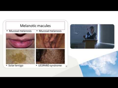 PHARMAC Seminar Series: Dermoscopy, 3 of 5. Dermatoscopic patterns