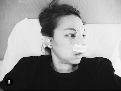 phẫu thuật thẩm mỹ Hàn Quốc - tư vấn nâng mũi