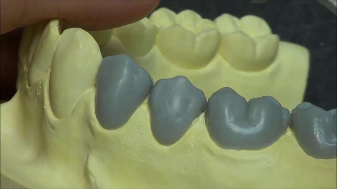 live wax up - lower 2nd premolar  full