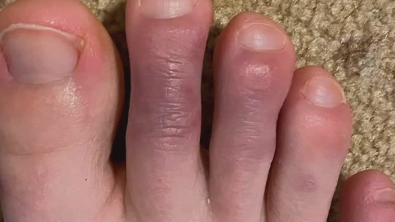 What are COVID toes? thumbnail