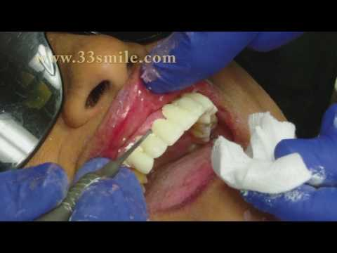 Dental Crowns and Bridges Procedure at Cosmetic Dental Associates in San Antonio, TX