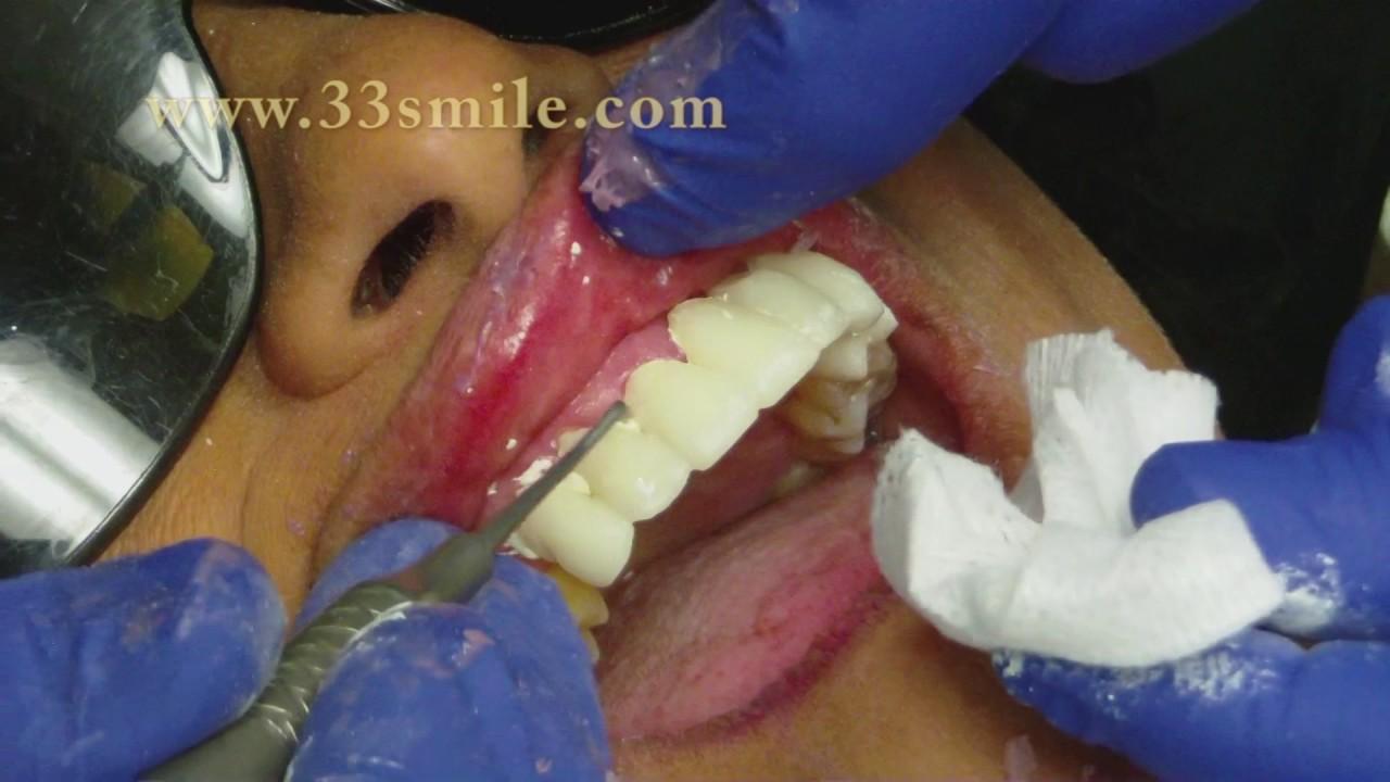 Dental Crowns And Bridges Procedure At Cosmetic Dental Associates In