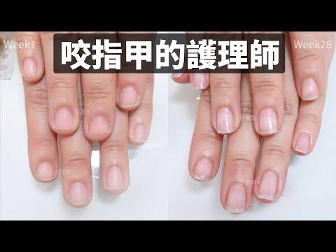 咬指甲的護理師 短指甲凝膠指甲矯正|問題指甲處理|咬甲後遺症