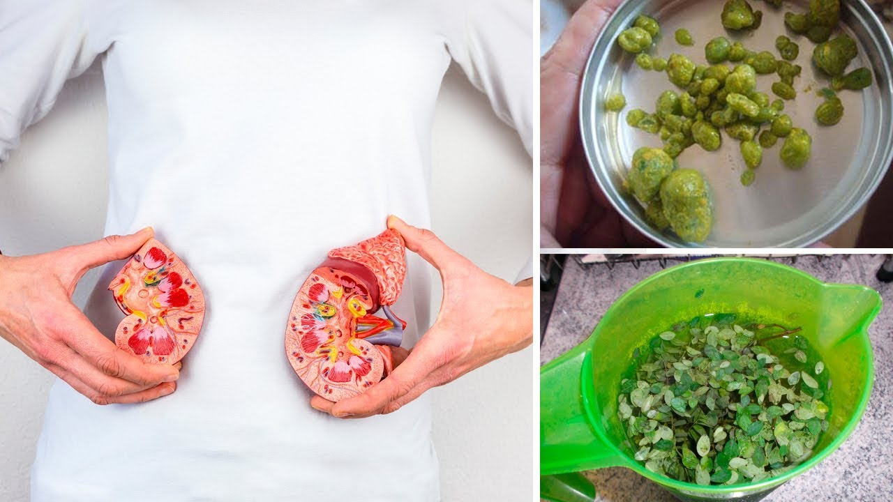 Make This Recipe To Eliminate Kidney and Gallbladder Stones Naturally at Home