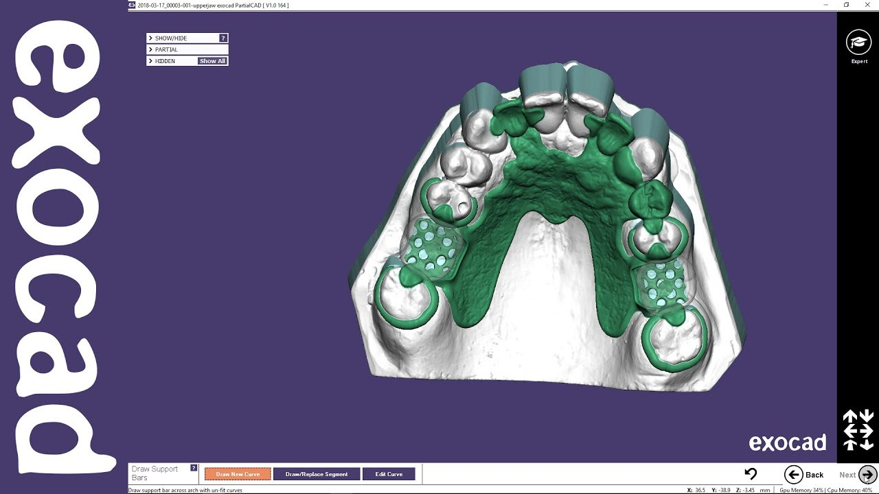 exocad Video Tutorial (basic): Designing a Removable Partial Framework