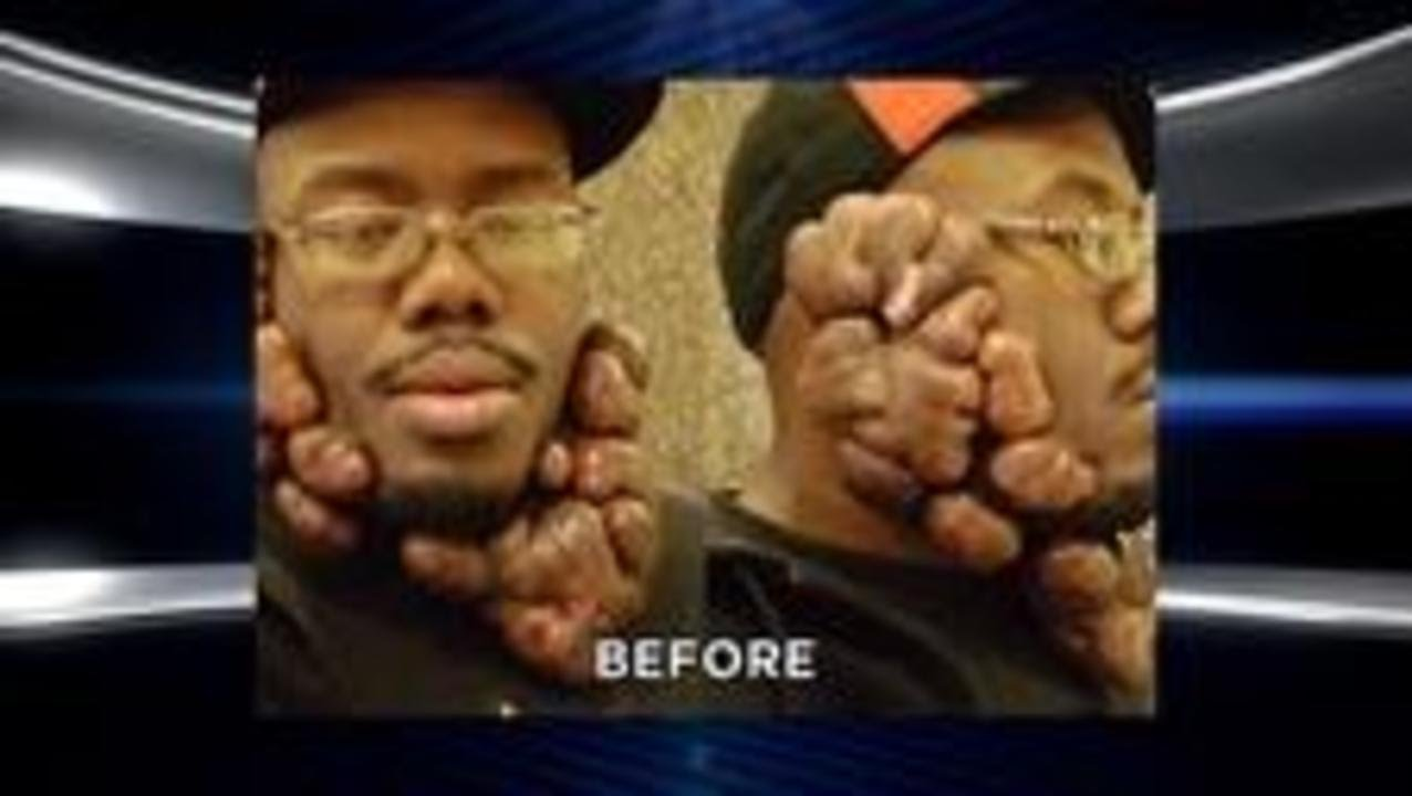 16a82cb1fd Mind-Blowing Makeovers  Unbelievable Keloid Removal  Extreme Excess Skin  Surgery