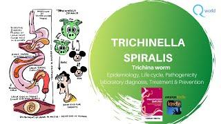 trichinella elleni antitestek