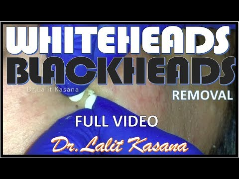 WHITEHEADS AND BLACKHEADS REMOVAL FULL VIDEO  by DR.LALIT KASANA