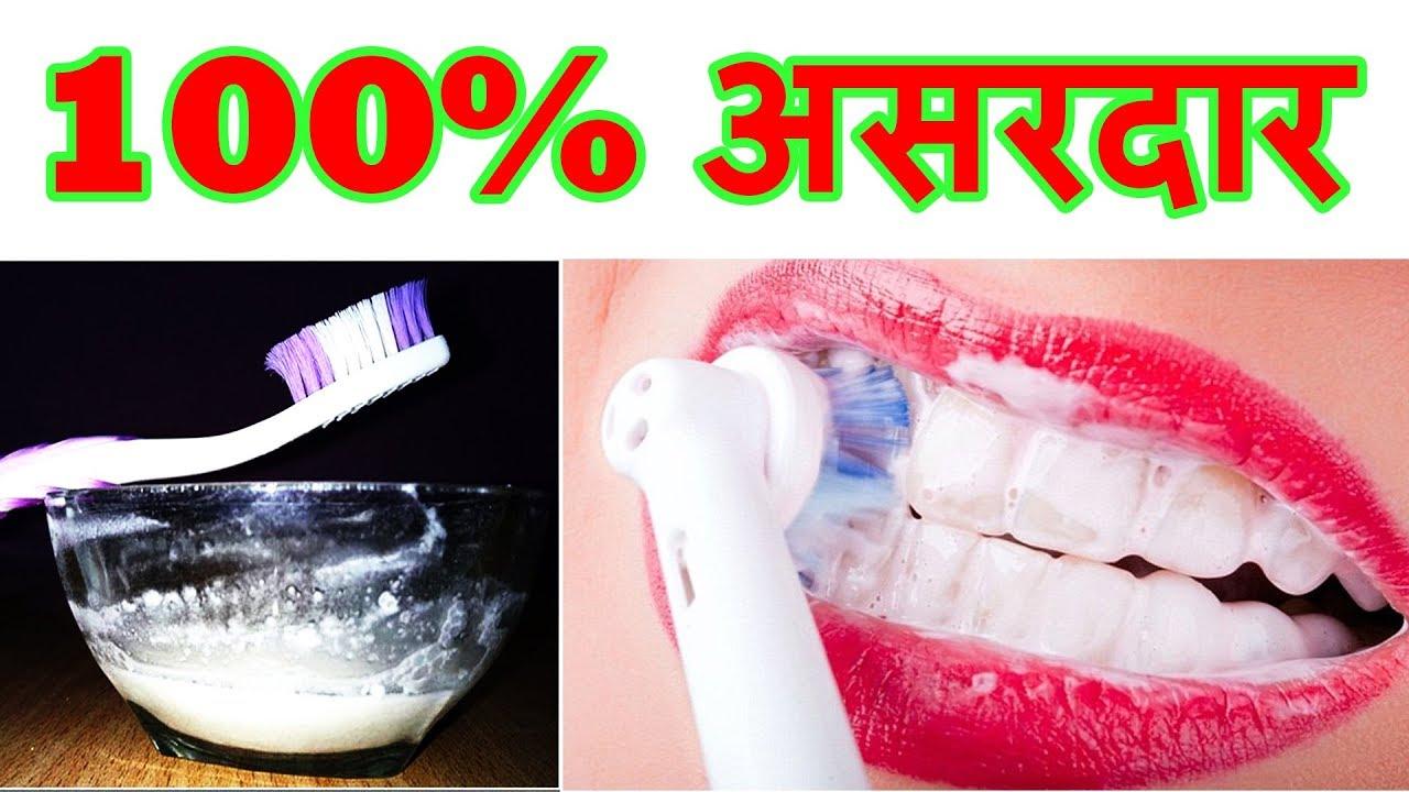 Home Remedies For Yellow Teeth Solution Ayurvedic Nuskhe For Teeth